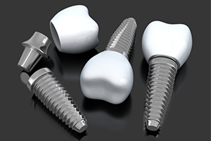 Three animated dental implant supported replacement teeth