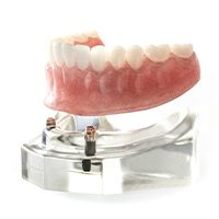 Model dental implant supported denture placement