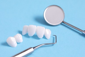 Porcelain veneers, which are commonly part of smile makeovers